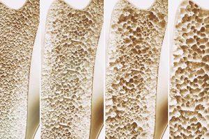 klinik Osteoporose